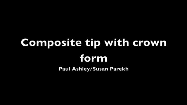 Placing a composite tip using a crown form